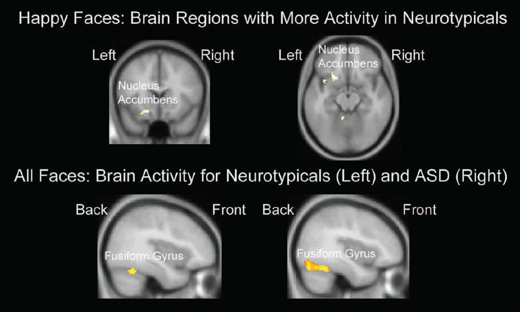 Figure 2: Brain activations during the Emotional Go/No-Go task. Areas in yellow and orange show regions with increases in brain activity. Brain region labels refer to the areas of activity appearing just below the labels. Adapted from Shafritz et al. (2015